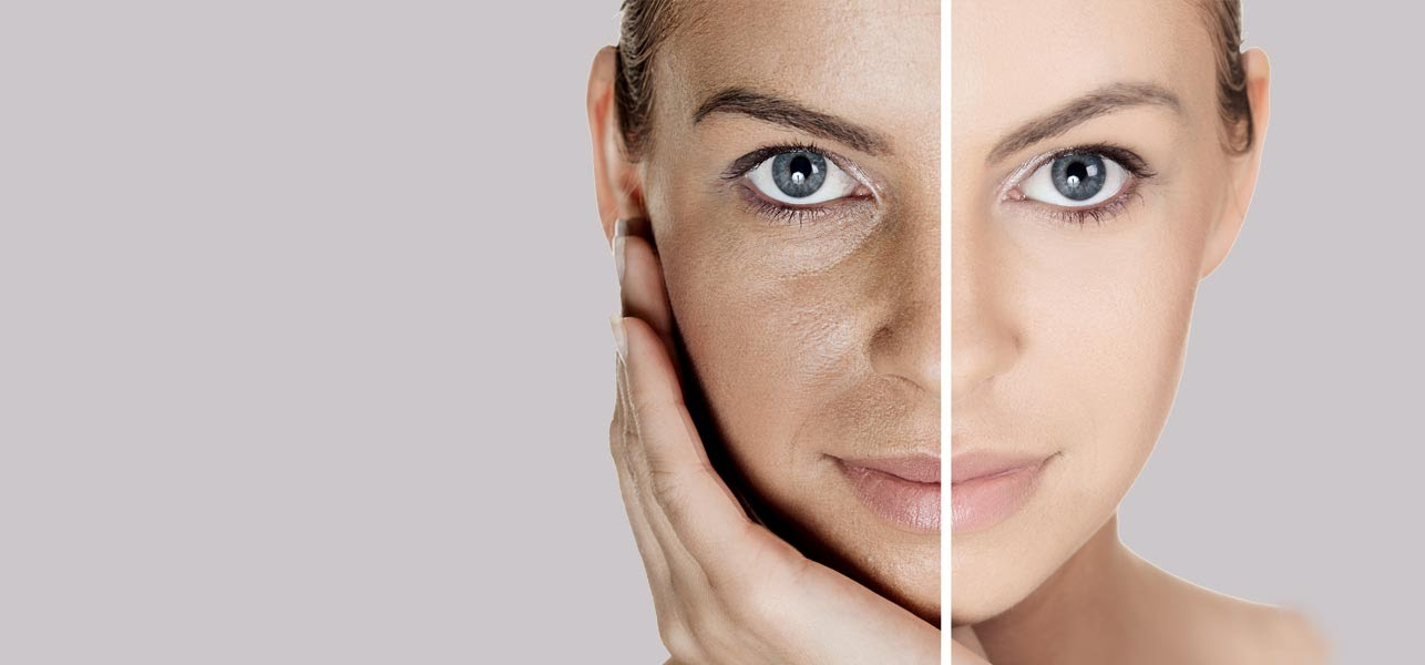 10 Super Easy Home Remedies to Get Even Skin Tone