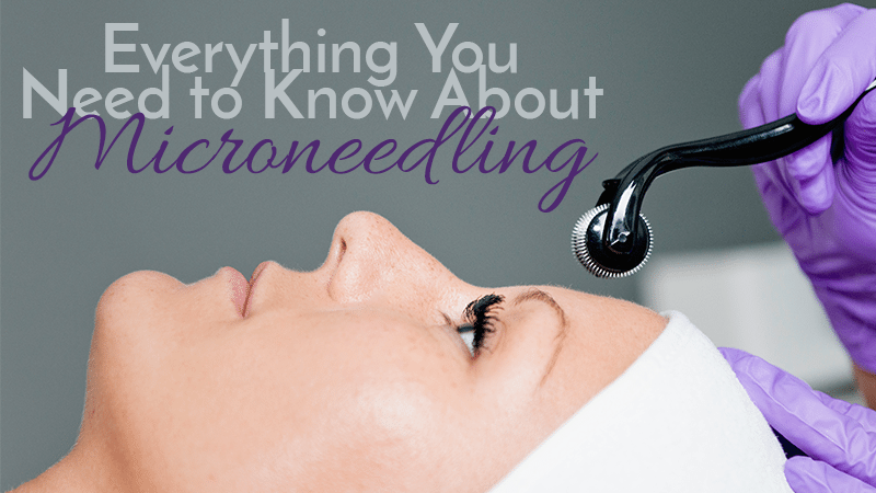 Everything You Should Know About Microneedling